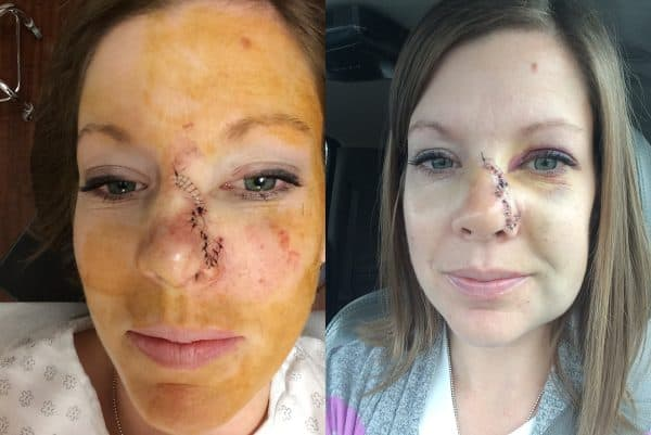 Skin Cancer Update My Go To Sun Care Products Clothing Hats Sunscreen Mel S Kitchen Cafe