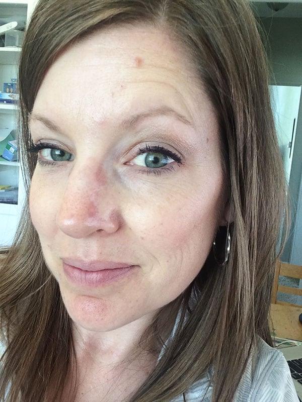 Mel Skin Cancer Update + Skin Cancer Recommendations
